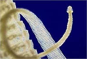 cisticerkoz